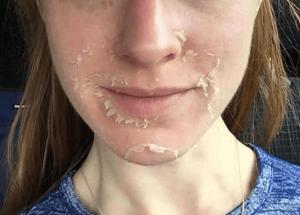 Reveal beautiful skin